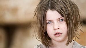 Бледность лица у ребенка