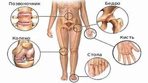 Хрустят суставы бедер период реабилитации после эндопротезирования коленного сустава